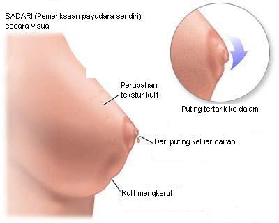 Obat Sakit Payudara Mengobati Sakit Payudara Dengan Obat Sakit